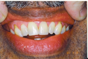 central_incisors2_001